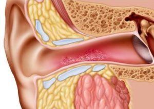 11 Home Remedies For Swimmer's Ear You Should Try